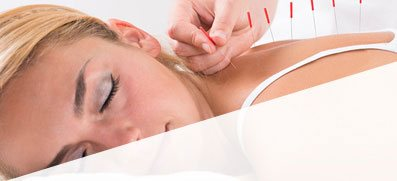 Acupuncture Can Improve your Health